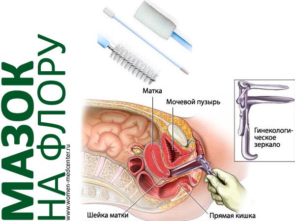 foto-zhenshin-v-kresle-ginekologa